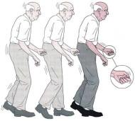 Болезнь Паркинсона идёт в мозг из кишечника