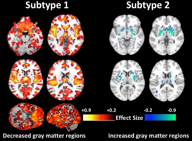 Пространство спешит порадовать - медики обнаружили новый тип шизофрении