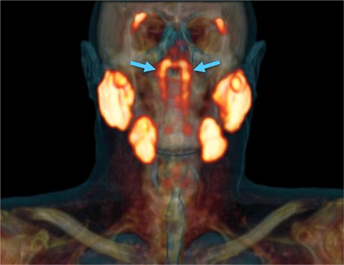 Трубные слюнные железы на ПЭТ-КТ / ©Valstar et al., 2020
