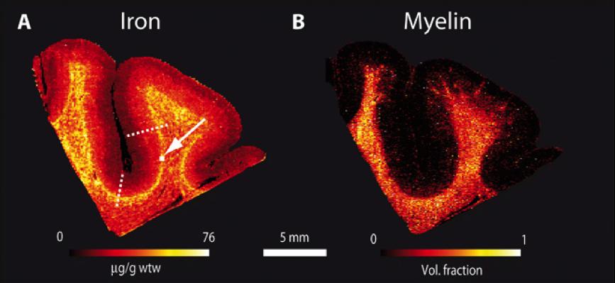 Между «мирами»: радиологи смогли разглядеть слой между серым и белым веществом